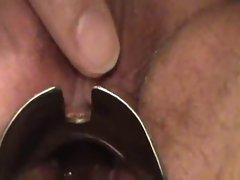 bbw masturbate with speculum show cervix contracting orgasm